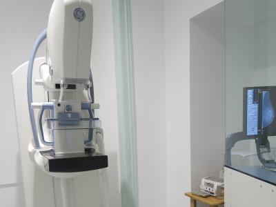 Novo Sistema de Mamografia Digital 3D na Clínica de São Cristóvão